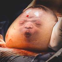 Unas imágenes espectaculares de partos velados nos ayudan a imaginar cómo es la vida de un bebé en el útero materno