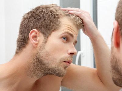 Por qué tu madre tiene pelazo y tu padre se está quedando calvo: las razones por las que la calvicie afecta a unos y no a otros