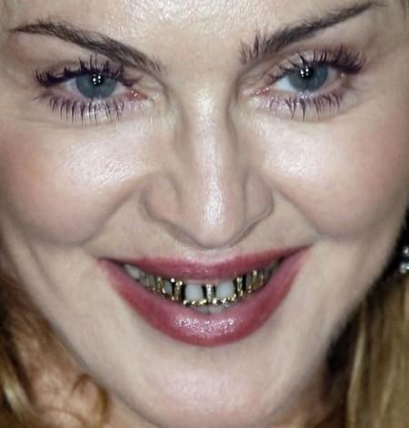 Madonna con grillz