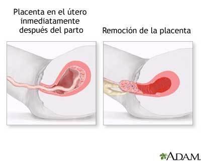 Riesgos inmediatos del postparto: inversión del útero