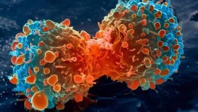 Ahora resulta que el cáncer es cuestión de...¿mala suerte?