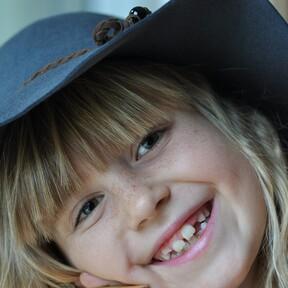 Agenesia dental en niños, o cuando los dientes de leche o definitivos no llegan a desarrollarse: ¿por qué ocurre y cómo se trata?