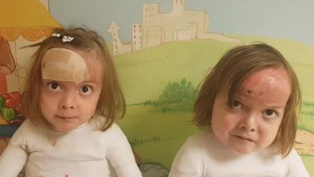 """""""¿Vosotros que lleváis siete días en casa os quejáis?"""": el emotivo mensaje de unas gemelas con piel de mariposa que llevan cuatro meses en el hospital"""
