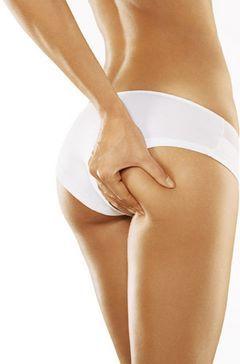 Operación quitarse la celulitis: ejercicios recomendados