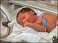 Sobre el peso de los bebés prematuros al momento de darles el alta hospitalaria