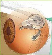Implante de retina artificial realizado con éxito