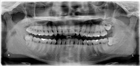Impacted Wisdom Teeth