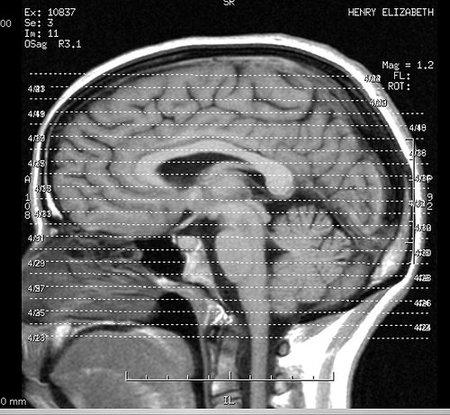 Estudio sobre el crecimiento acelerado del cerebro