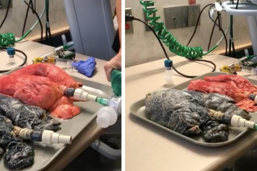 El vídeo que te muestra la increíble diferencia entre los pulmones de un fumador y unos pulmones sanos