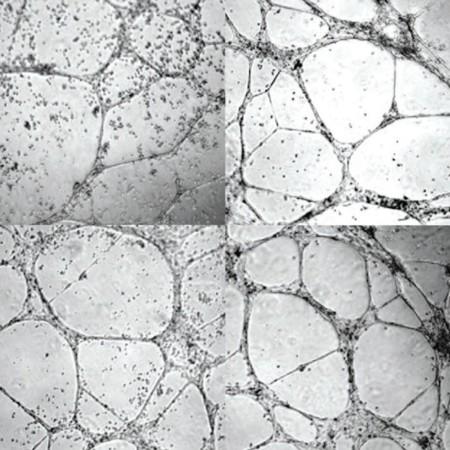Este gel reconstruye vasos sanguíneos y podría ser una esperanza para los diabéticos