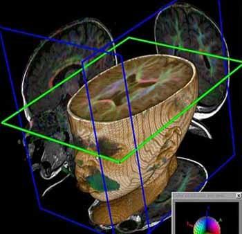 Avances para detectar lesiones en el cerebro del feto