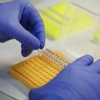 """""""La genética nos da una 'medicina de precisión': diagnosticar y tomar decisiones basadas en el ADN del paciente"""""""