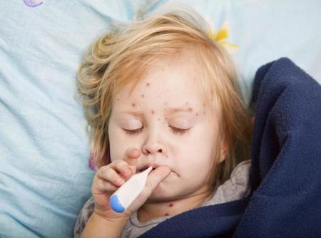 EE.UU. alerta de que cada vez hay más casos de sarampión