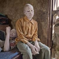 'Albino', de Ana Palacios: Libro y exposición que denuncia la situación de los albinos en África