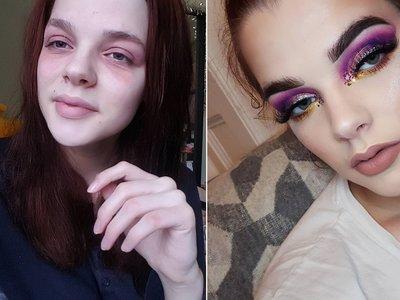 Body-positive en estado puro: esta joven británica convierte su eczema en obras de arte makeup