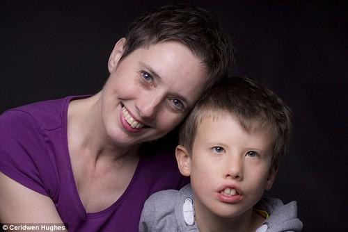 """""""Same but different"""": los niños detrás de sus enfermedades"""