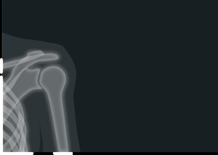 X Ray 1884888 1280