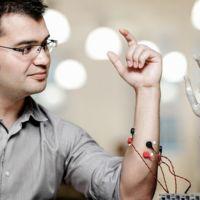 Esta increíble prótesis implantada en el hueso y controlada por la mente ha sido desarrollada por un mexicano