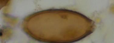 Hace 8.000 años, 3.000 antes de la invención del primer retrete, ya teníamos parásitos intestinales