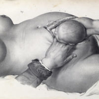 Las dos increíbles ilustraciones que muestran cómo se hacían las cesáreas cuando se operaba sin anestesia