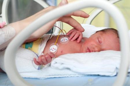 Habitaciones privadas para las familias, beneficiosas para los prematuros en cuidados intensivos