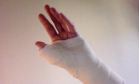 Cómo reacciona el músculo ante una lesión y rehabilitación