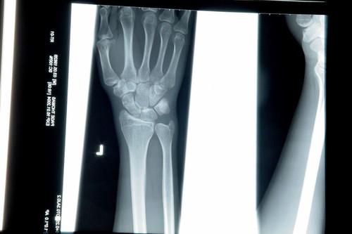 A los radiólogos les están avisando de que un robot va a hacer su trabajo mejor, pero ellos no lo ven tan claro