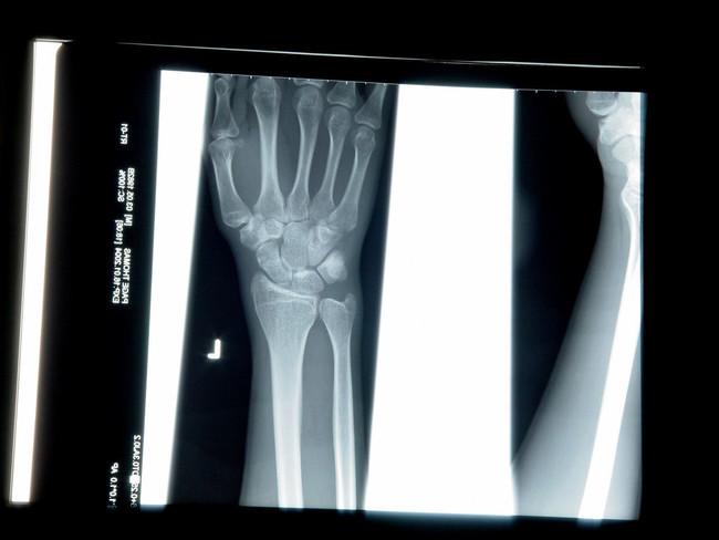 Tom Page Radiologia