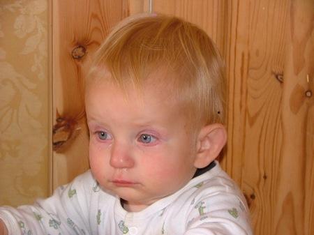Remedios caseros para el dolor de garganta en niños
