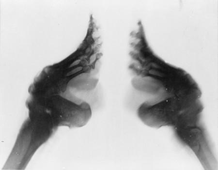 Radiografia Pies