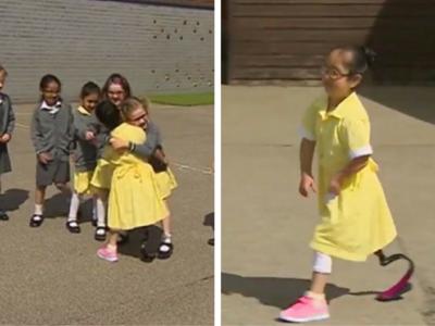 Una niña de siete años enseña a sus compañeros su nueva prótesis y su reacción es enternecedora