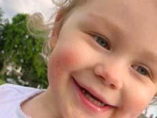 Uno de cada cuatro niños europeos es alérgico