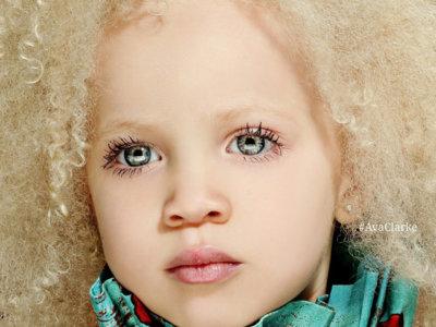 El caso de Ava Clarke, belleza diferente que triunfa