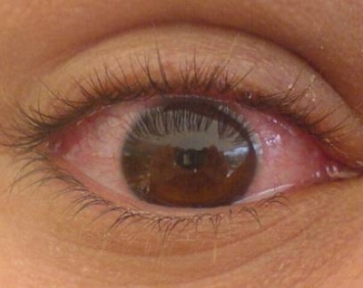 Cómo mejorar el aspecto estético de unos ojos con conjuntivitis