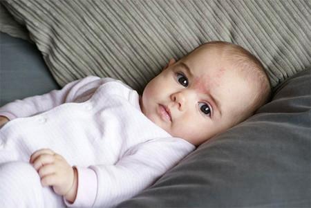 piel-bebe
