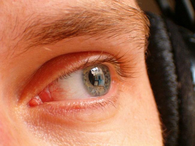 el contorno del ojo