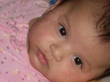 El eccema en los niños multiplica por cuatro el riesgo de asma y rinitis alérgica