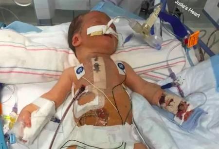 La madre de un bebé inmunodeprimido ruega a los demás padres que los niños enfermos se queden en casa