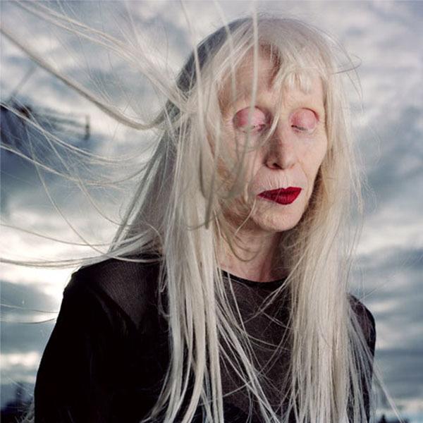 Albinos_Ana