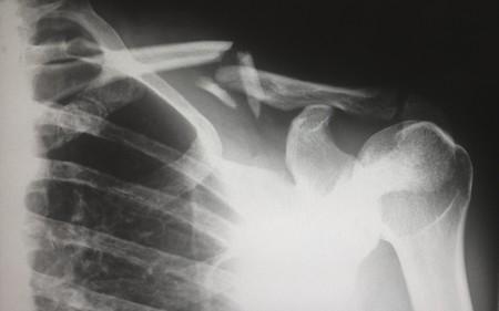 La fractura de clavícula es una de las lesiones más frecuentes en los ciclistas: este es su tratamiento