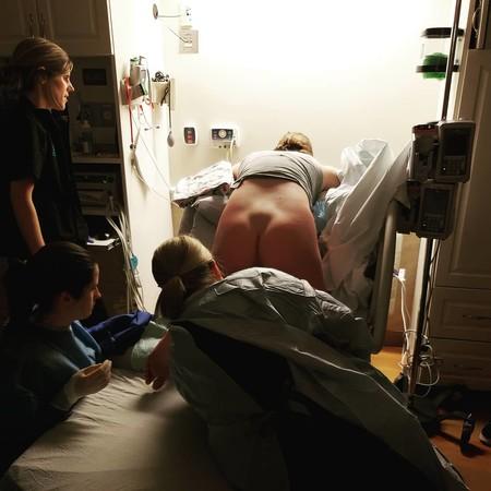 La impresionante fotografía que captura cómo se mueven los huesos de la madre durante el parto para abrir camino al bebé