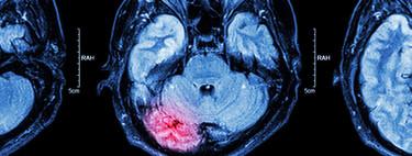 Accidentes Cerebrovasculares: una nueva y terrible epidemia