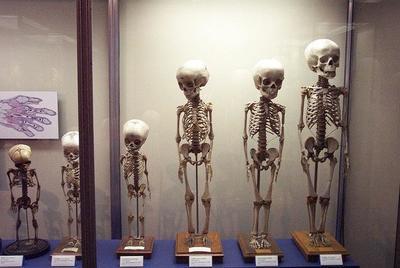 Cómo prevenir la osteoporosis desde la infancia