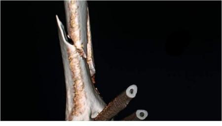Fractura Epifisis Distal Humero