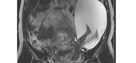 El increíble embarazo de un bebé que atravesó el útero con sus piernas