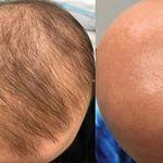 Un tratamiento para el eccema tiene un curioso efecto secundario en los alopécicos