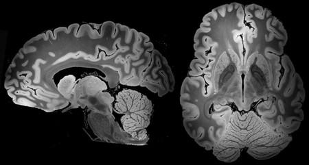 Nunca hemos visto un cerebro tan completo como este tras 100 horas de resonancia magnética