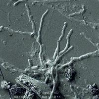 Estas neuronas humanas encontradas tienen 2.000 años y está vitrificadas porque son de una víctima de la erupción del Vesubio