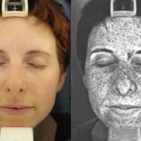 La inteligencia artificial ya detecta cáncer de piel mejor que los dermatólogos y esto sí es un éxito importante
