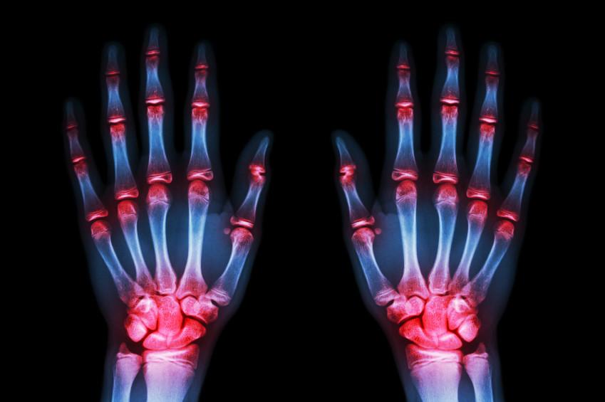 examen+para+saber+si+hay+artrosis